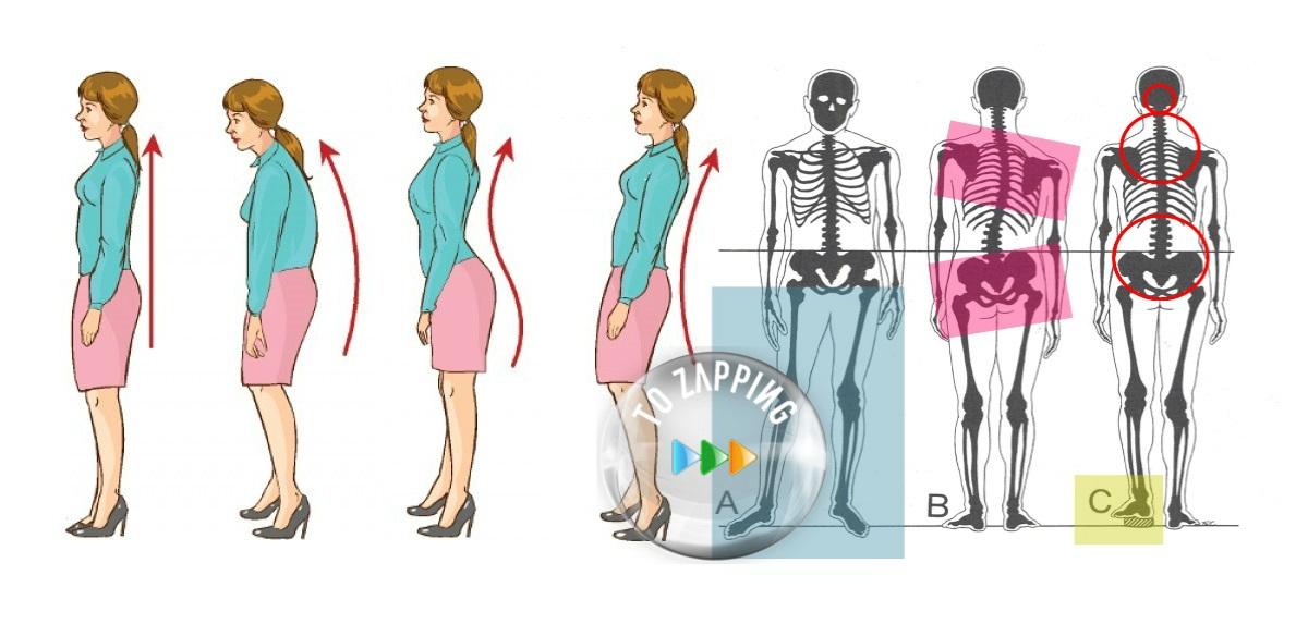 Las malas postura y sus consecuencias para la salud