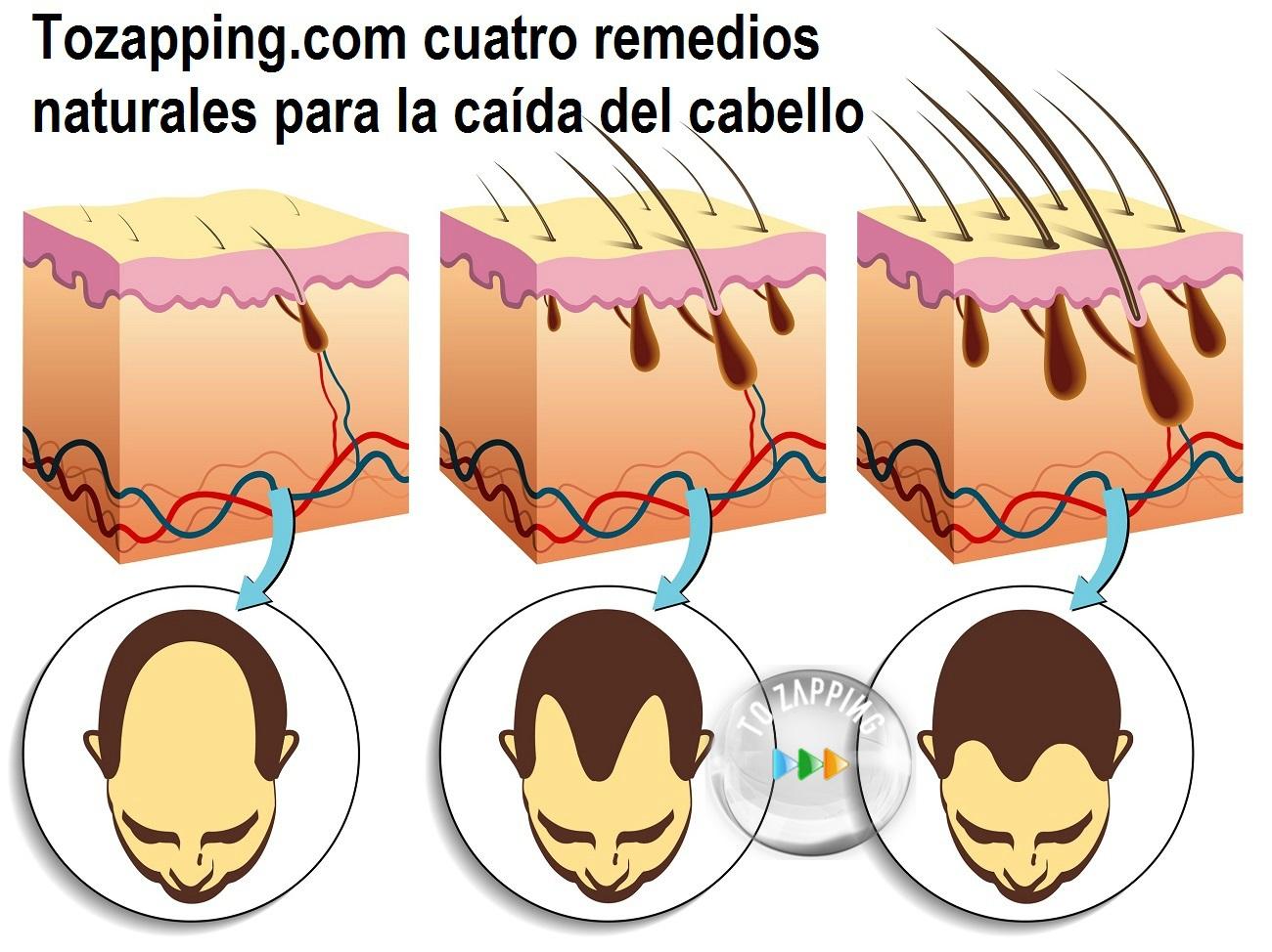 remedios natural para la caida del pelo