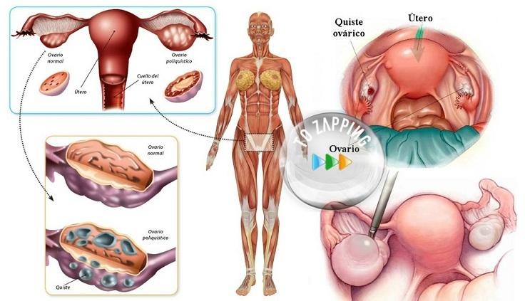 remedios caseros para un quiste en el ovario