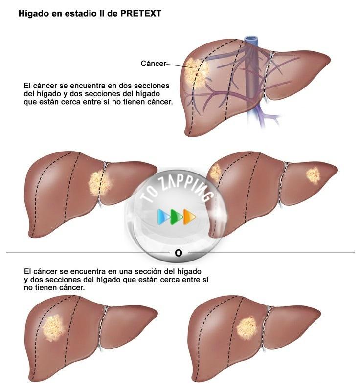 Consumir café nos ampara del cáncer de hígado