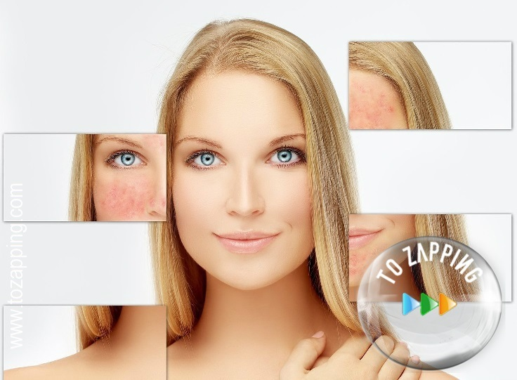 Remedio de bicarbonato de sodio para tratar el acné