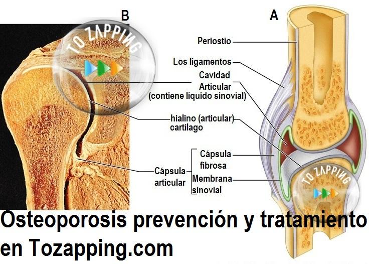 Osteoporosis prevención y tratamiento
