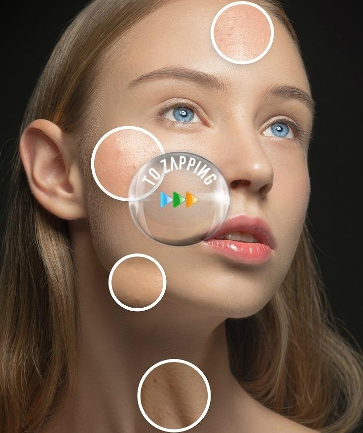Como eliminar espinillas ciegas en la cara