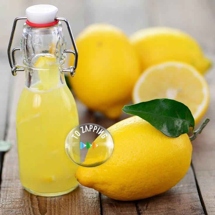limon y calculos biliares